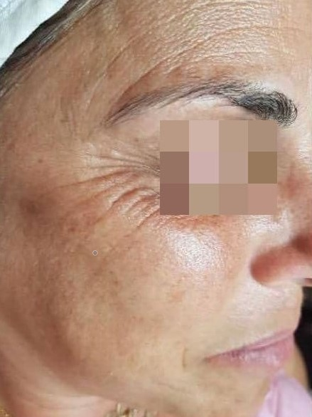 פנים לפני טיפול ב Anti-Aging