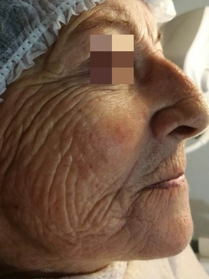 Face before treatment inAnti-Aging