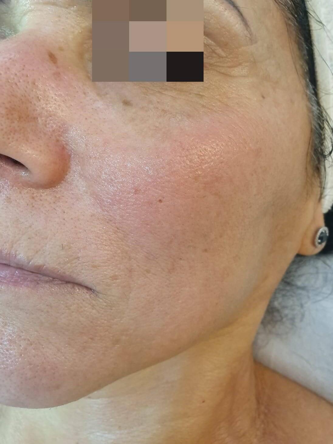 פנים אחרי טיפול ב Anti-Aging