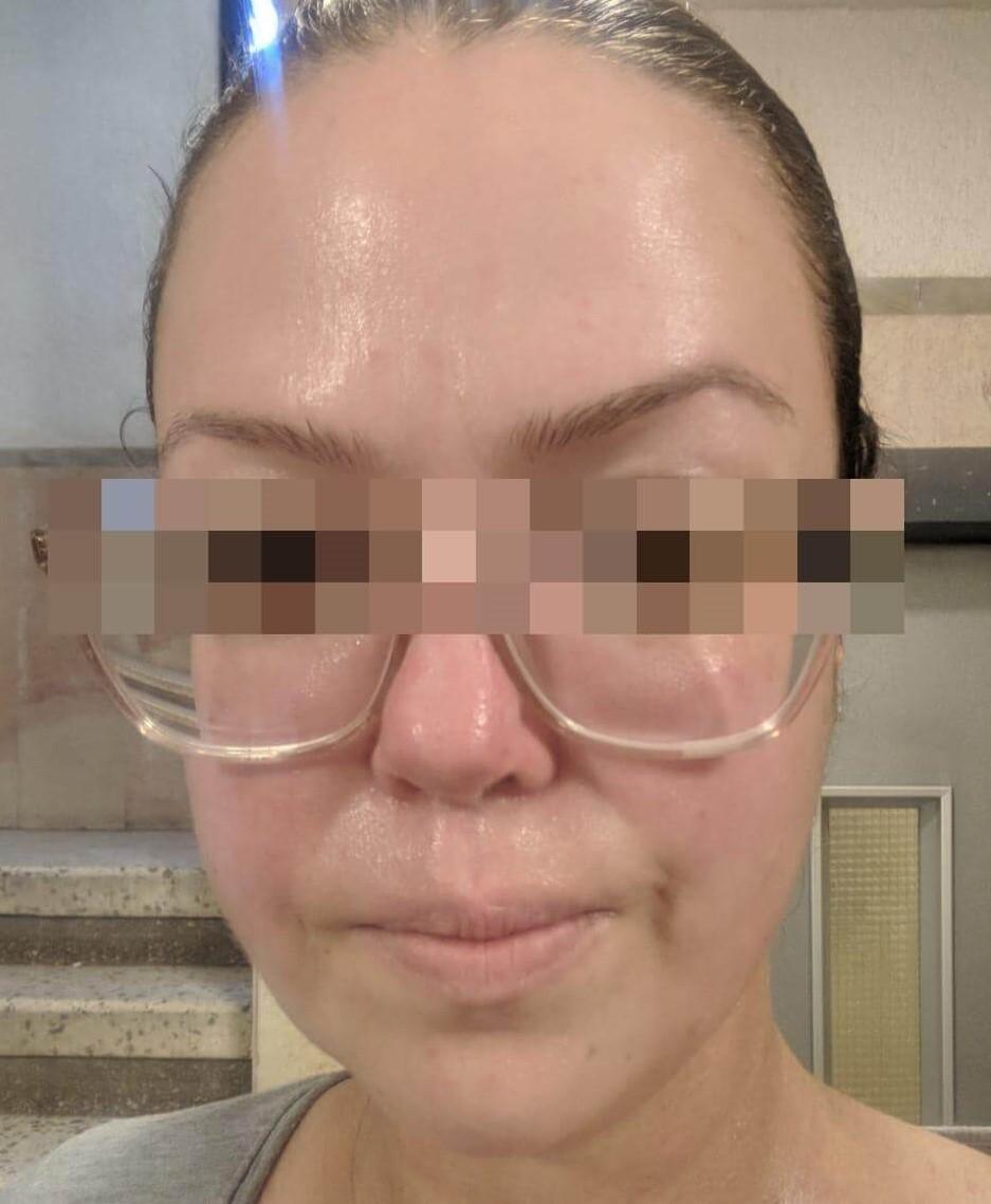 פנים אחרי טיפול ב New-Test