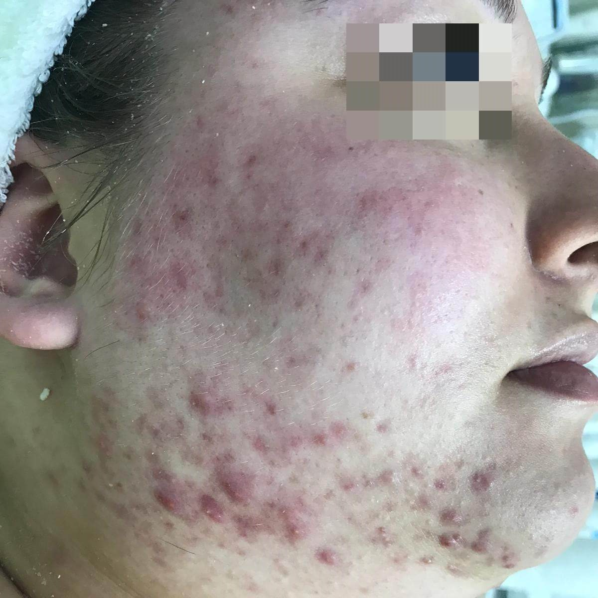 פנים לפני טיפול ב New-Test