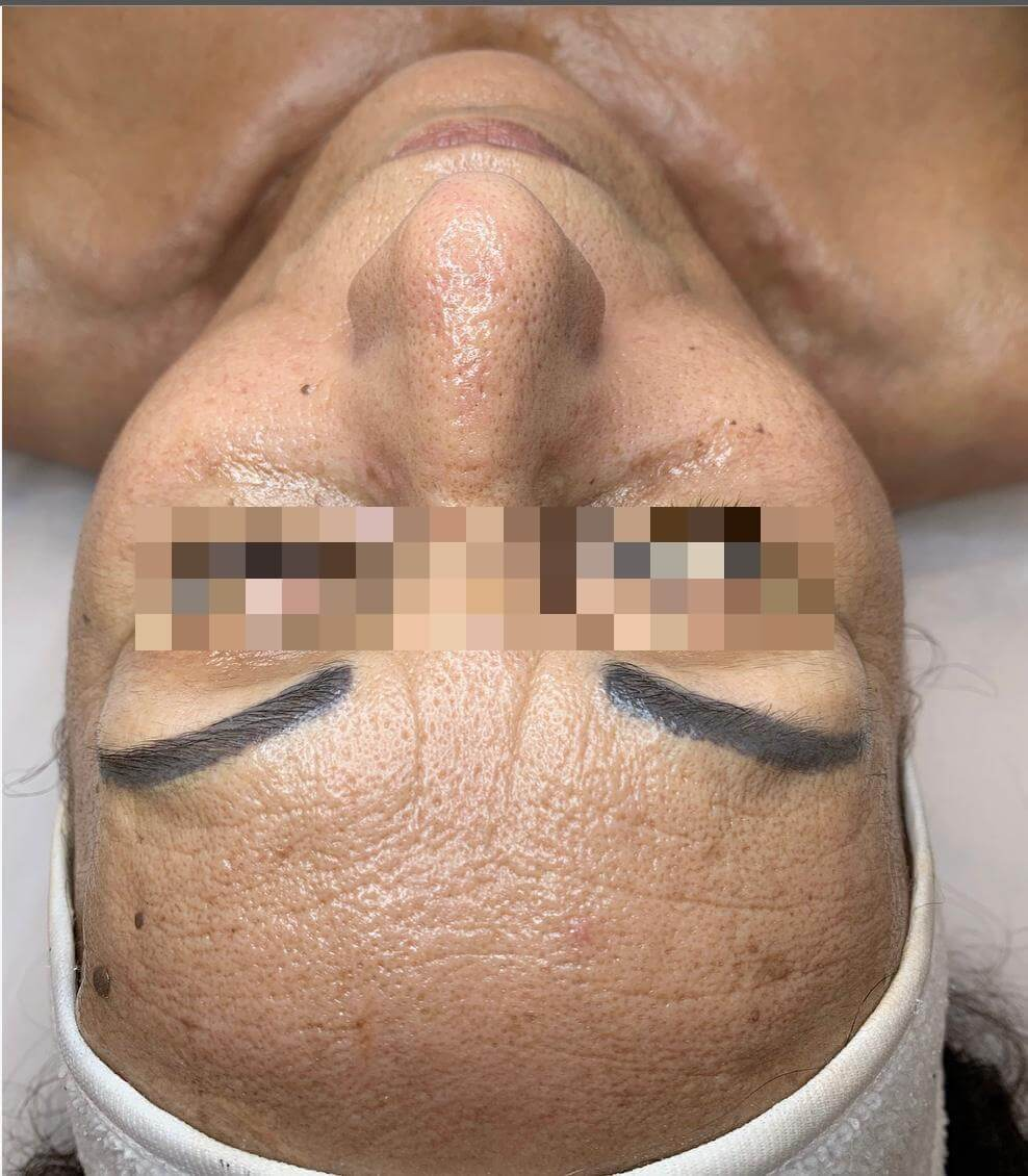 Face after treatment inPigmentation