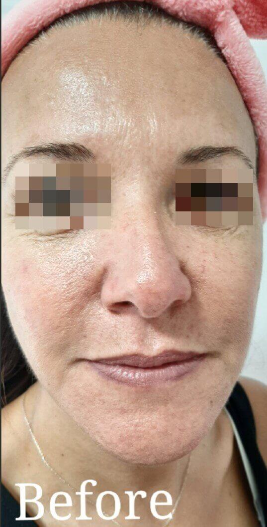 פנים לפני טיפול ב Pigmentation
