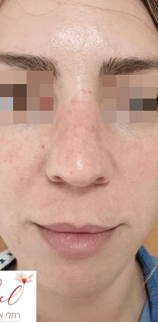 פנים אחרי טיפול ב Pigmentation