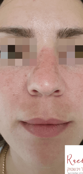 Face before treatment inPigmentation